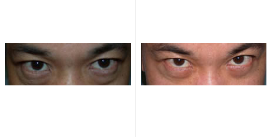 asian eyelid_ba_1.jpg