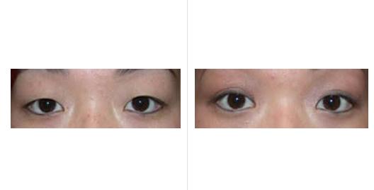 asian eyelid_ba_4.jpg