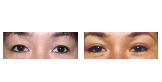 asian eyelid_ba_5.jpg
