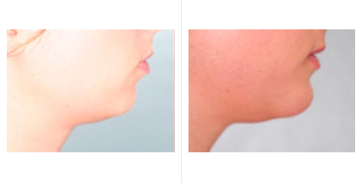 Chin Augmentation Before and After