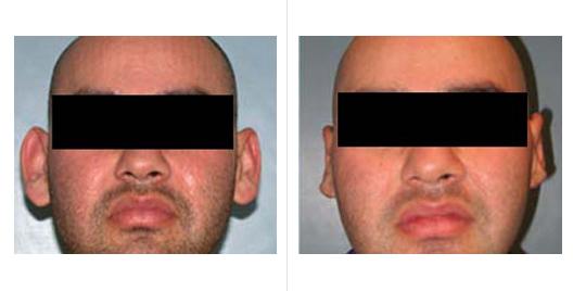 ear reduction_1.jpg