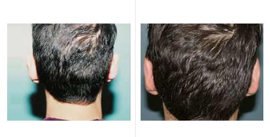 ear reduction_2.jpg