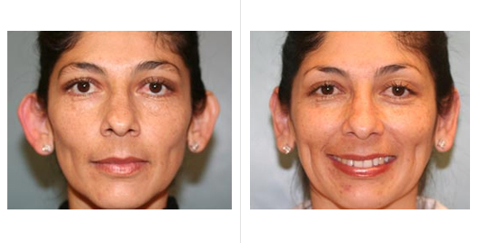 Ear Reduction Before and After