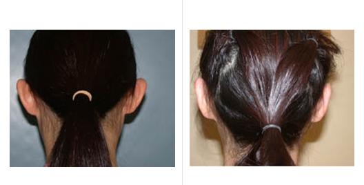 ear reduction_4.jpg