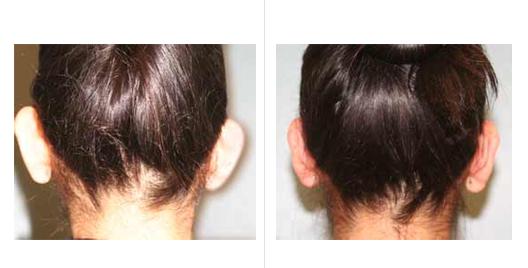 ear reduction_5.jpg