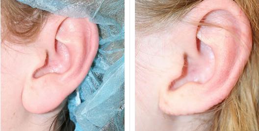 earlobe_repair_reduction_4.jpg