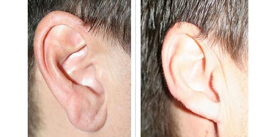earlobe_repair_3.jpg