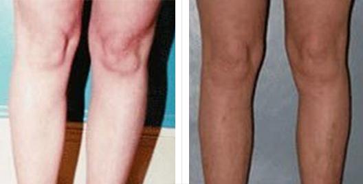 liposuction_ba_1.jpg