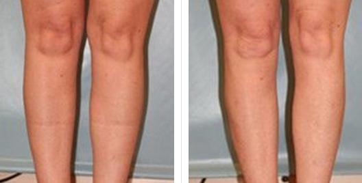 liposuction_ba_2.jpg