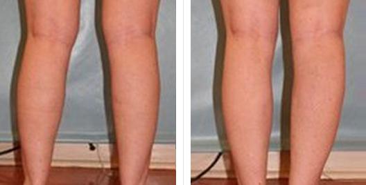 liposuction_ba_4.jpg