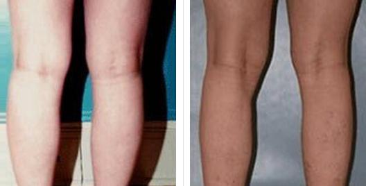 liposuction_ba_5.jpg