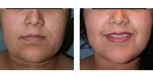 liposuction_ba_7.jpg
