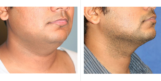 liposuction_ba_8.jpg
