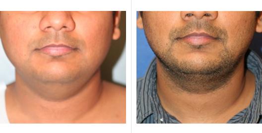 liposuction_ba_9.jpg