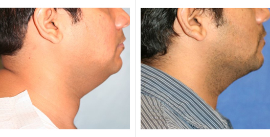 liposuction_ba_10.jpg