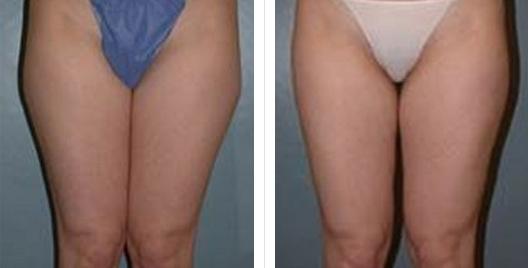 liposuction_ba_11.jpg