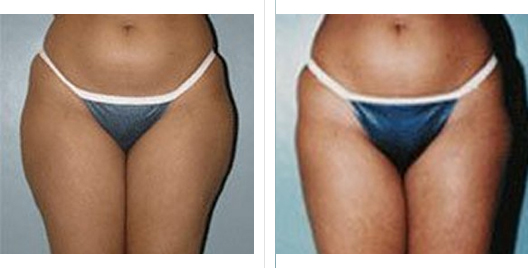 liposuction_ba_12.jpg
