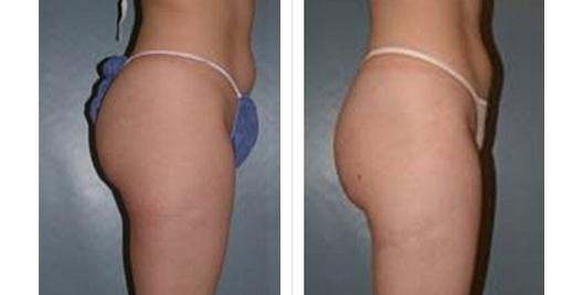 liposuction_ba_13.jpg