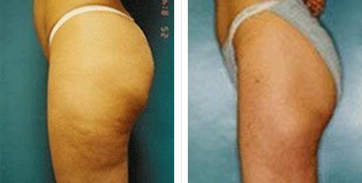 liposuction_ba_14.jpg