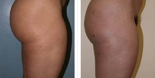 liposuction_ba_15.jpg