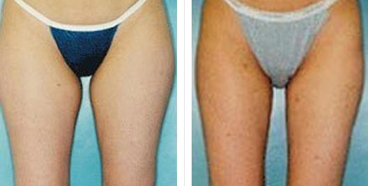 liposuction_ba_16.jpg
