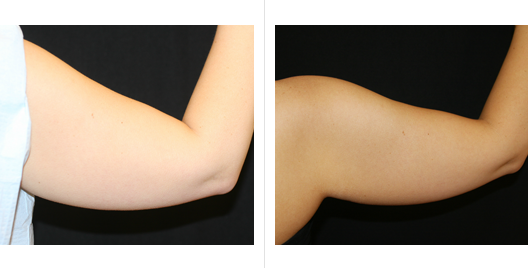 coolsculpting_before_after_8.png