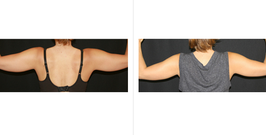 coolsculpting_before_after_10.jpg