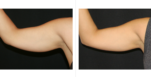 coolsculpting_before_after_11.png