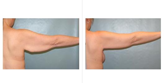 arm lift_ba_1.jpg