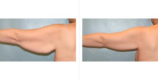 arm lift_ba_3.jpg