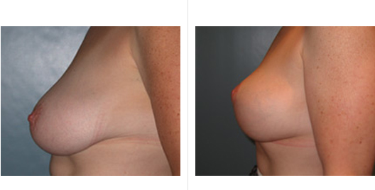 breastlift_ba_3.jpg