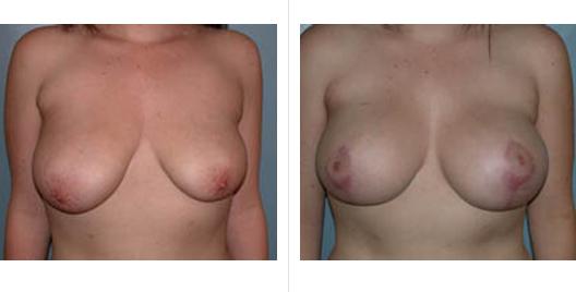 breast aug lift_ba_1.jpg