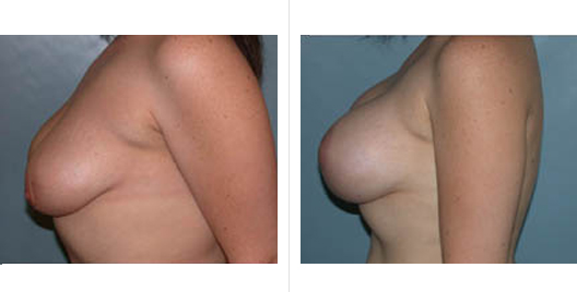 Breast Augmentation With Breast Lift Before and After