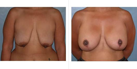 breast aug lift_ba_3.jpg