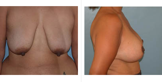 breast aug lift_ba_4.jpg