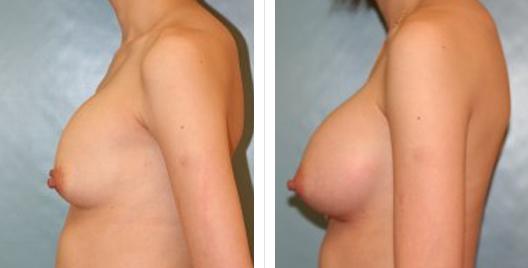 breast aug lift_ba_6.jpg