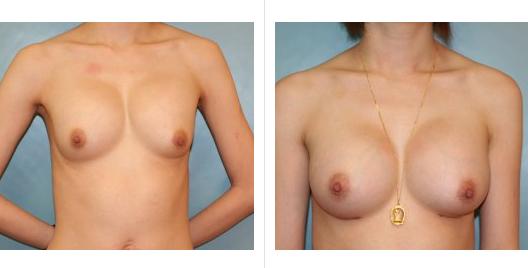 breast aug lift_ba_7.jpg