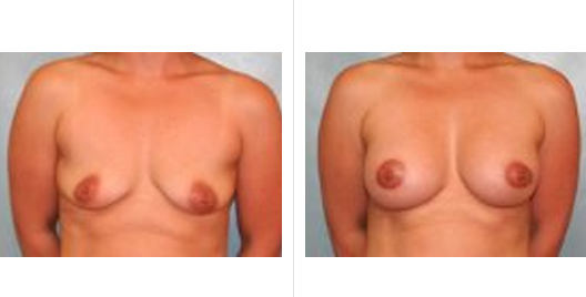 breast aug lift_ba_8.jpg
