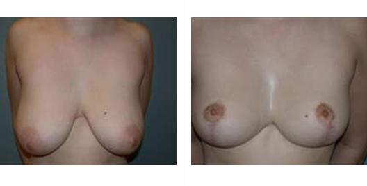 breast reduction_ba_5.jpg