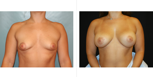 Nipple Lift Before and After