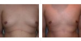 male breast_ba_9.jpg