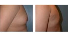 male breast_ba_10.jpg
