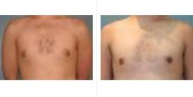 male breast_ba_11.jpg