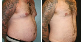 male breast_ba_13.jpg