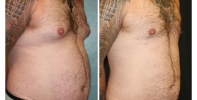 male breast_ba_15.jpg