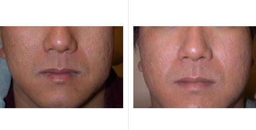 acne scar revision_ba_1.jpg