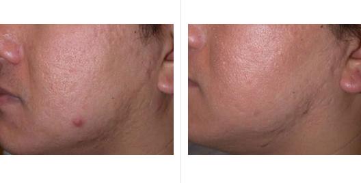 acne scar revision_ba_2.jpg