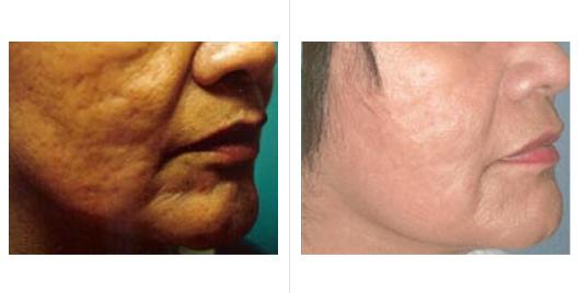 acne scar revision_ba_3.jpg
