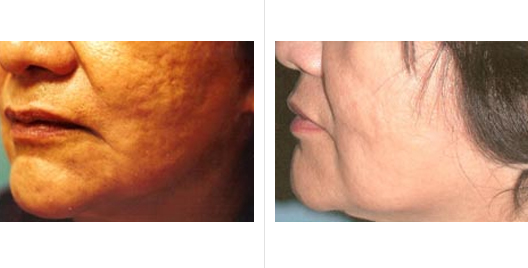 acne scar revision_ba_4.jpg