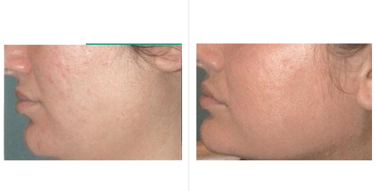 Acne Scar Revision Before and After